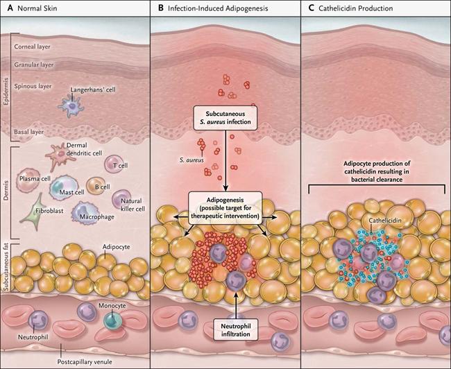 infección cutánea bariátrica